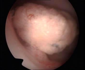 Histeroscopia vision de un cancer focal de endometrio