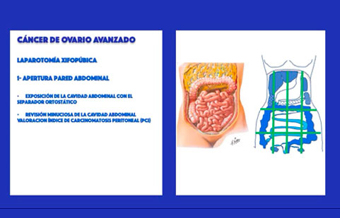 Estadios avanzados de cáncer de ovario