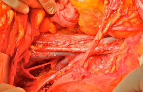 Visión final de la linfadenectomía pélvica y paraórtica