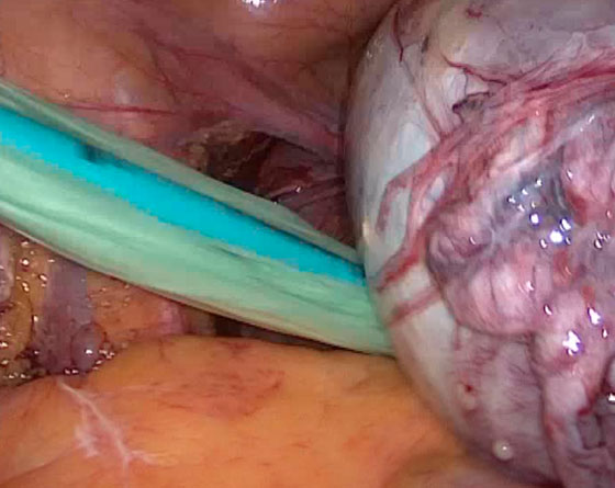 Visión intrabdominal laparoscópica