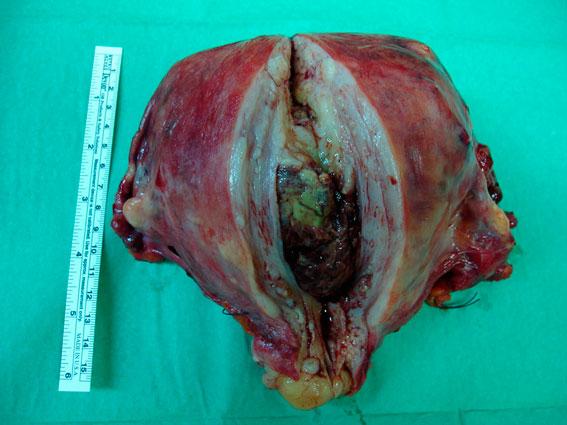 Utero: visión de la neoplasia endometrial.
